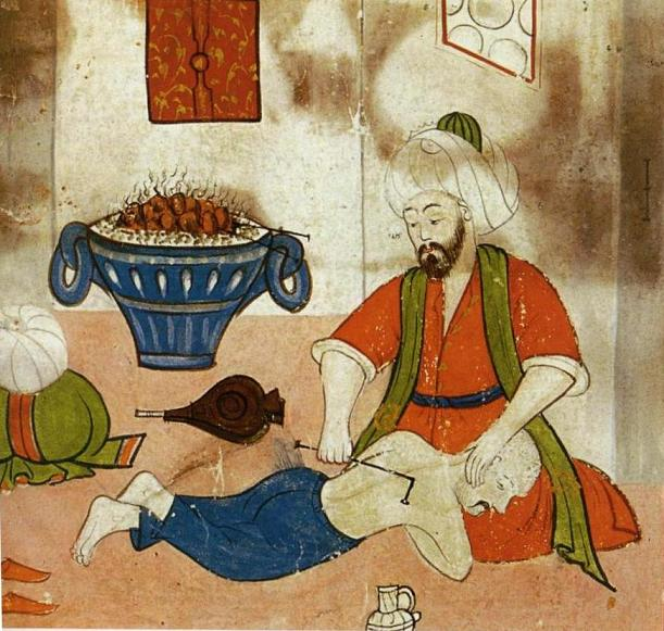 The treatment of a patient in an early period for curvature of the spine and reduction of a hunched back. Sabuncuoglu,Cerrâhiyat al-Hâniye.